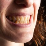 woman with yellow teeth desires a perfect smile as seen on TV