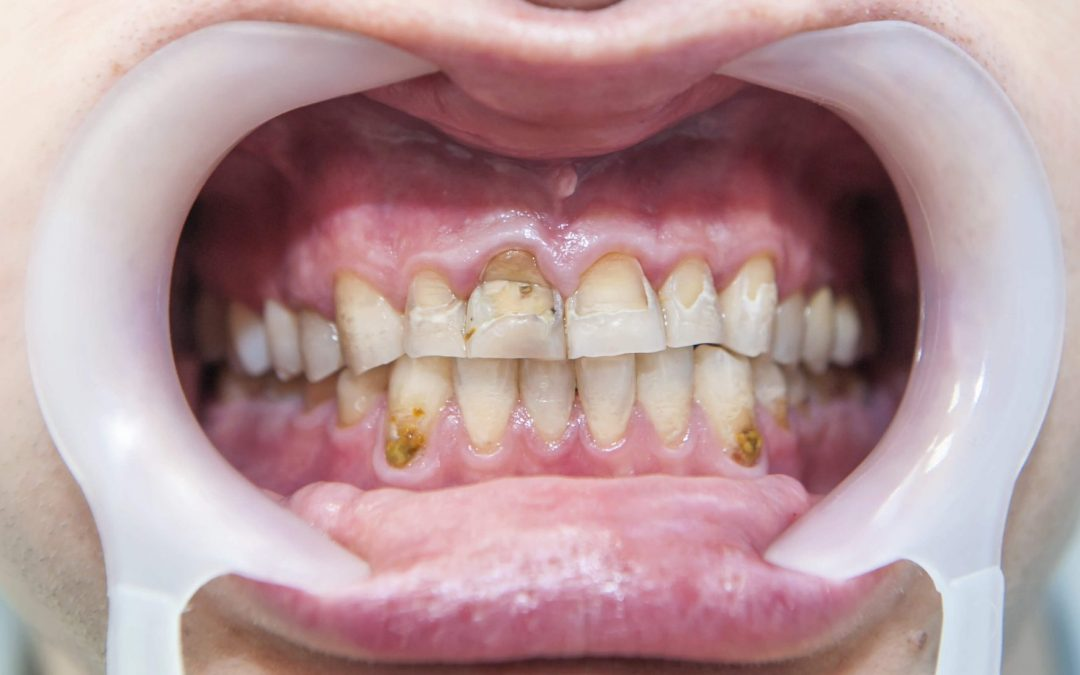 Dental Fluoride Treatment Sides Effects
