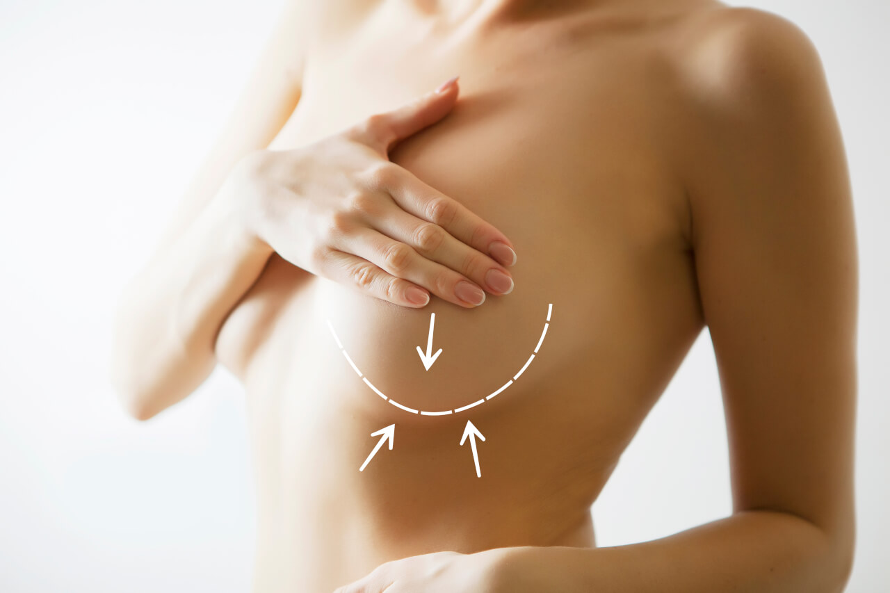 breast lift and augmentation cost