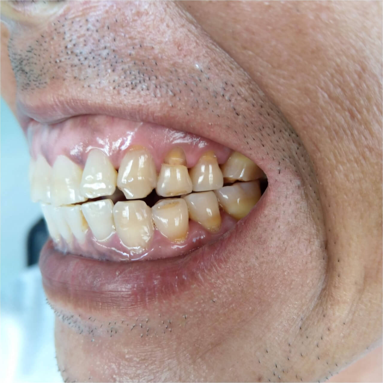 tooth erosion at gum line