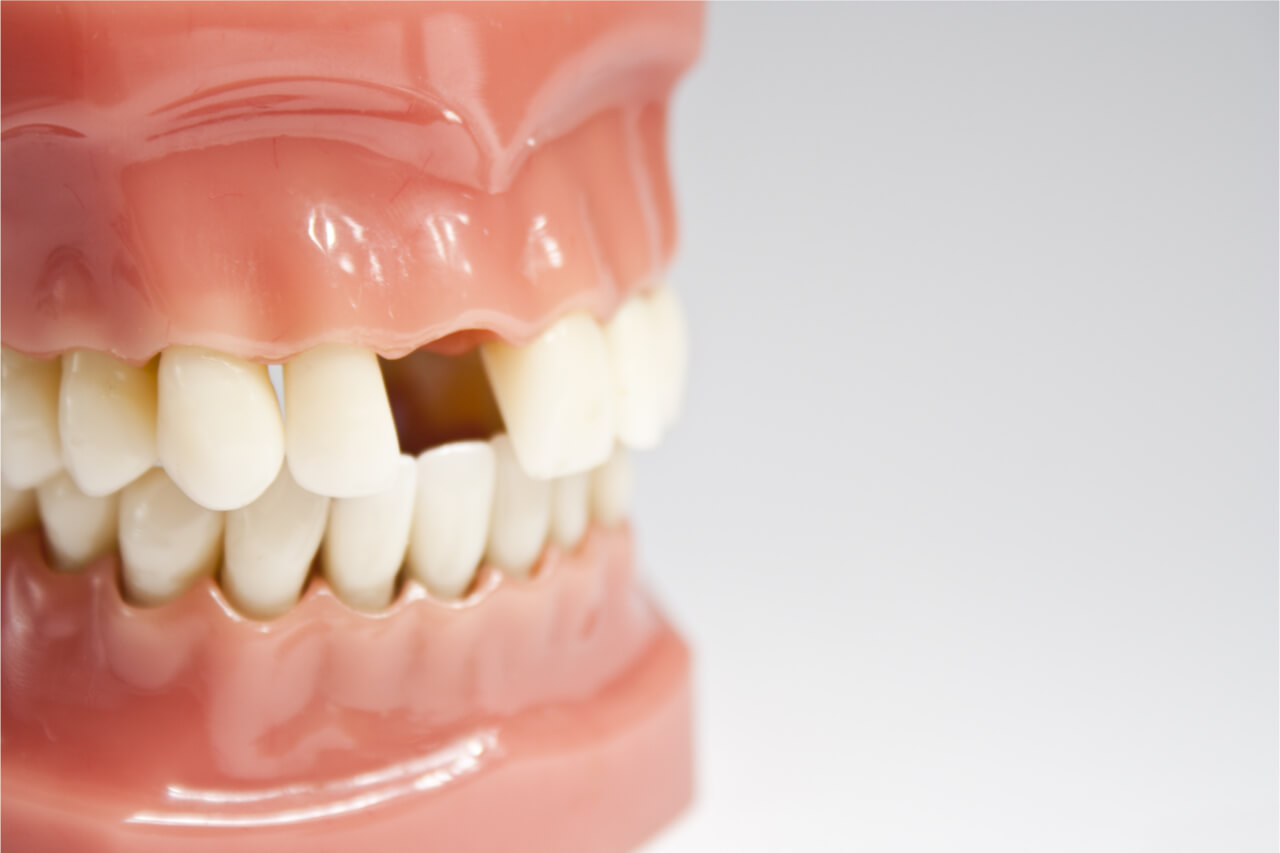 consequences of tooth loss