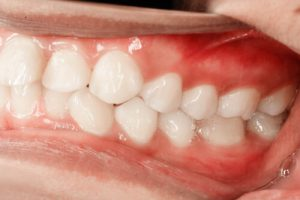 is hydrogen peroxide good for teeth