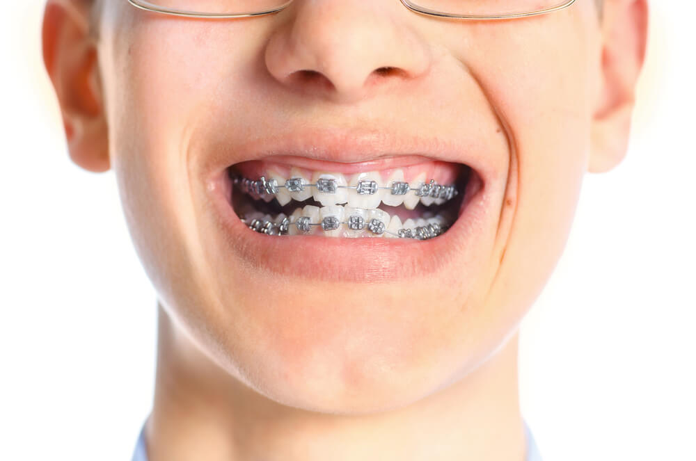 Braces on Crooked Teeth