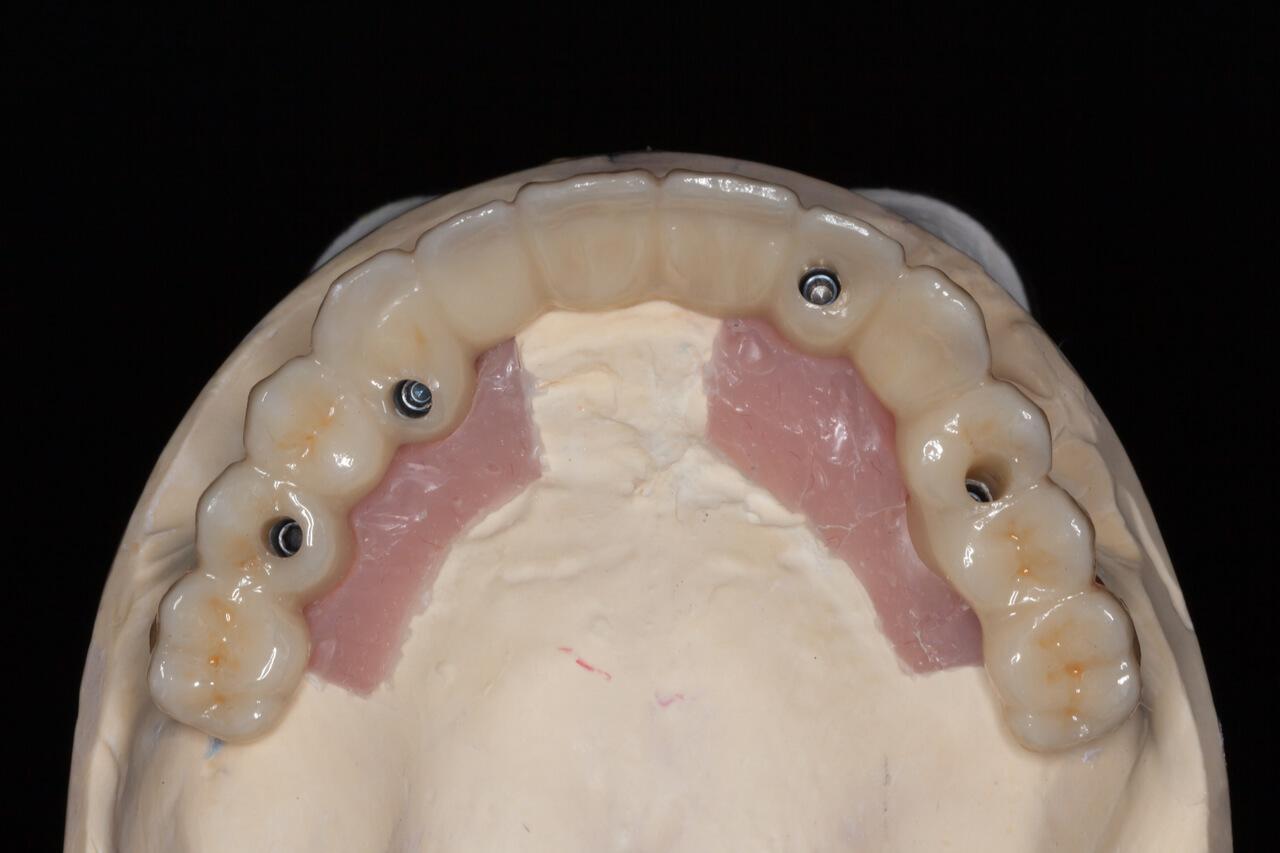 Prosthodontics dentists