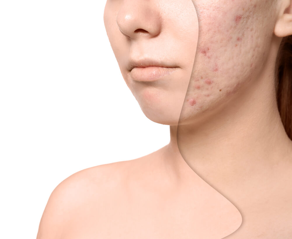 When Your Acne Problems Insists An Acne Dermatologist