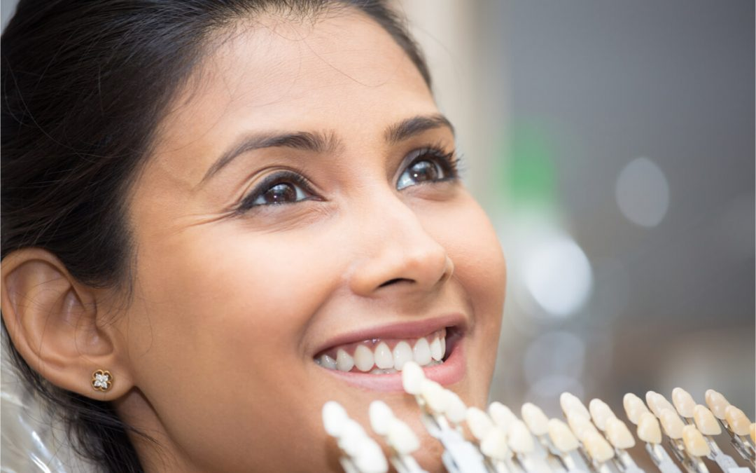 Dental Lumineer® VS. Porcelain Veneer